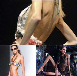 Anorexia brazilian death model